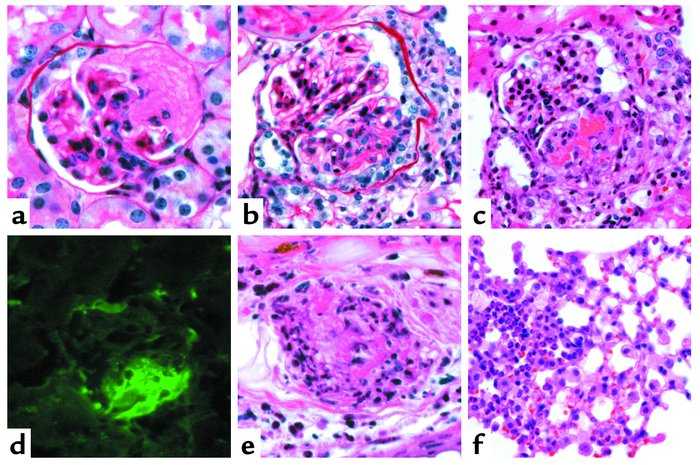 Vasculitic lesions in WT B6 mice 6 days after they received anti-MPO IgG...