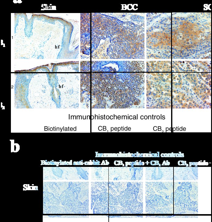 Immunohistochemical analysis of cannabinoid receptor expression in human...