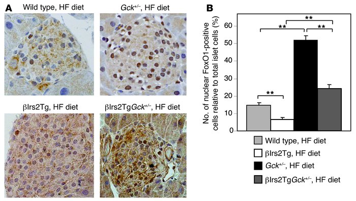 Nuclear FoxO1-positive cells increased in Gck+/– mice on the HF d...