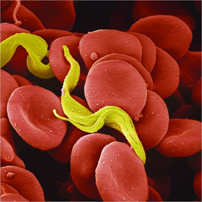 "african trypanosomiasis African trypanosomiasis, also known as ""sleeping sickness,"" is caused by microscopic parasites of the species trypanosoma brucei it is transmitted by the tsetse fly (glossina species), which is found only in rural africa although the infection is not found in the united states, historically, it has been a serious public health problem in some regions of sub-saharan africa."