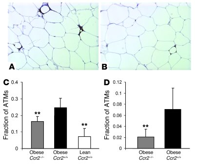 Glucose homeostasis in obese Ccr2–/– and Ccr2+/+ mice.                 (...