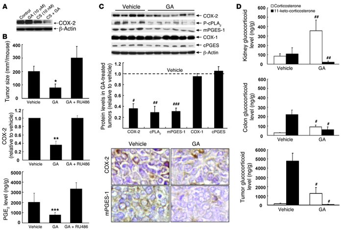 Inhibition of 11βHSD2 activity with GA suppressed tumor growth thr...