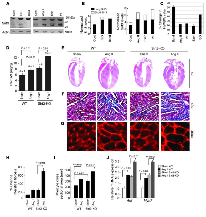 Sirt3 is required to block cardiac hypertrophic response. (A) Expression...