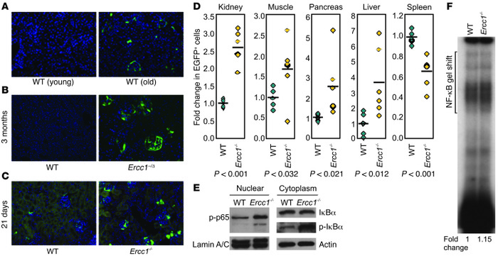 NF-κB activation is increased in tissues of old WT and progeroid, ...
