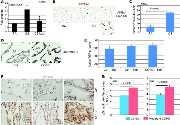 Chronic CS induces TGF-β expression in murine lungs and human COPD lungs...
