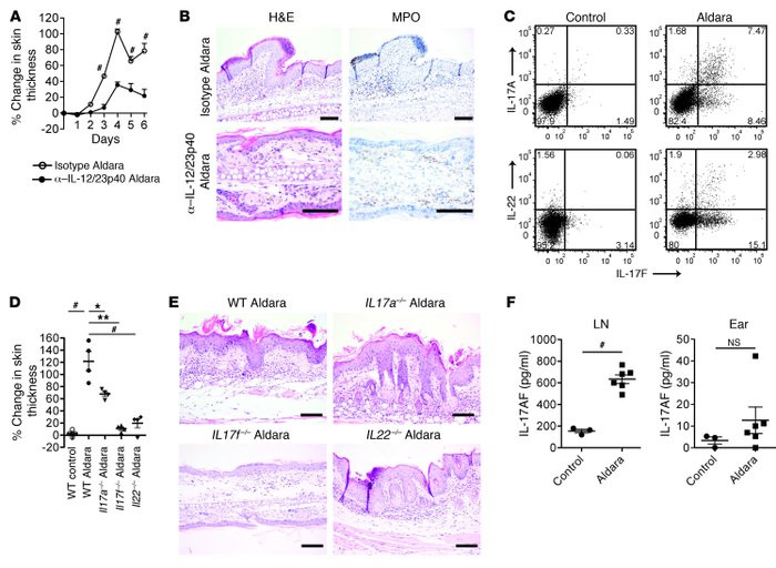 IL-17A, IL-17F, and IL-22 are important for psoriatic plaque formation. ...