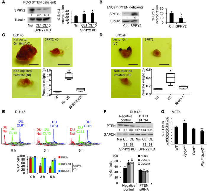 SPRY2 loss induces PTEN-mediated G1 arrest.   (A and B) Western blot and...