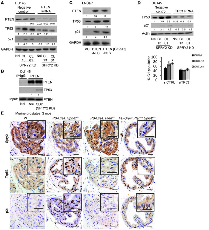 SPRY2 deficiency induces TP53-dependent G1 arrest via nuclear PTEN.   (A...