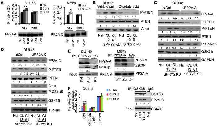 ROS-mediated PP2A activation increases phosphorylation of PTEN. (A) PP2A...