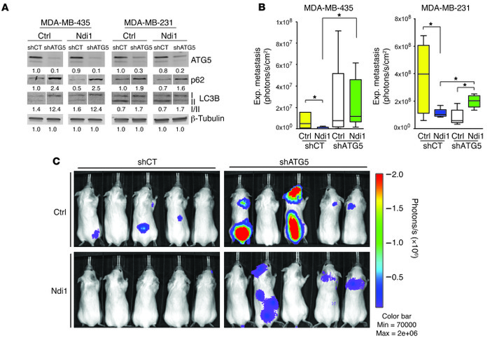 Metastasis inhibition by enhanced complex I activity depends on autophag...