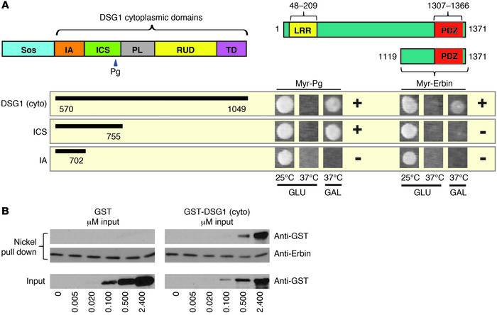 DSG1 interacts with Erbin in yeast 2-hybrid and in vitro binding assays....