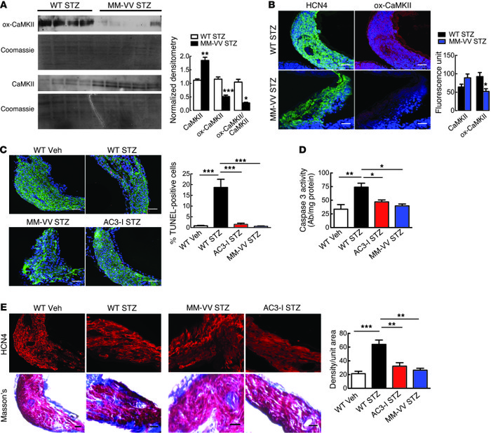 Oxidation-resistant CaMKII and myocardial CaMKII inhibition protects aga...