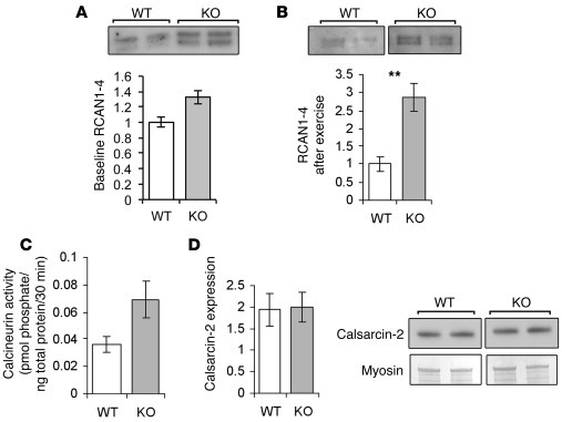 Calcineurin signaling is increased in α-actinin-3–deficient...