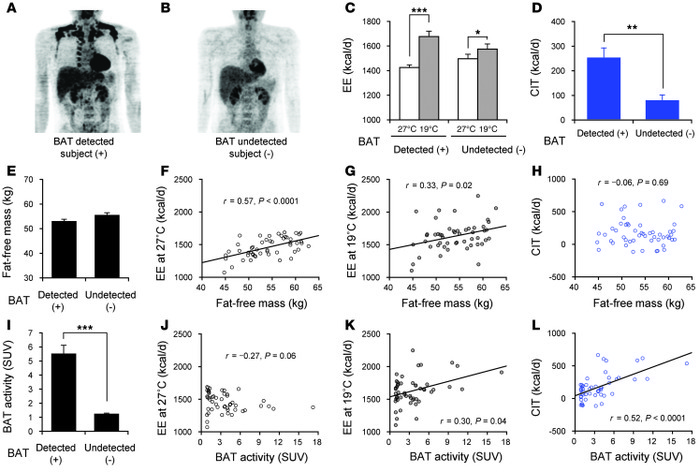 Contribution of BAT to whole-body EE. (A and B) FDG-PET/CT images of sub...
