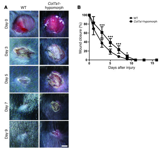 Delayed wound closure in Col7a1-hypomorphic mice.   (A) Closure of 6-mm ...