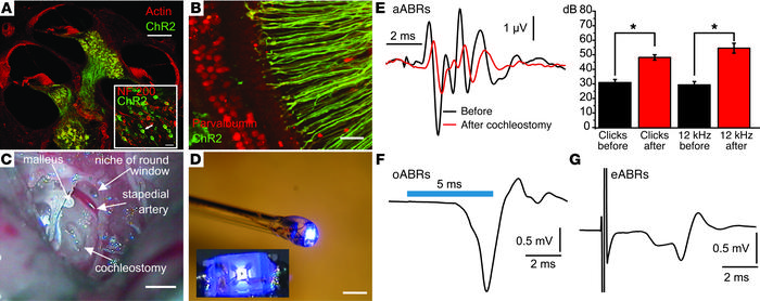 Optical activation of the auditory pathway in ChR2 transgenic mice.   (A...