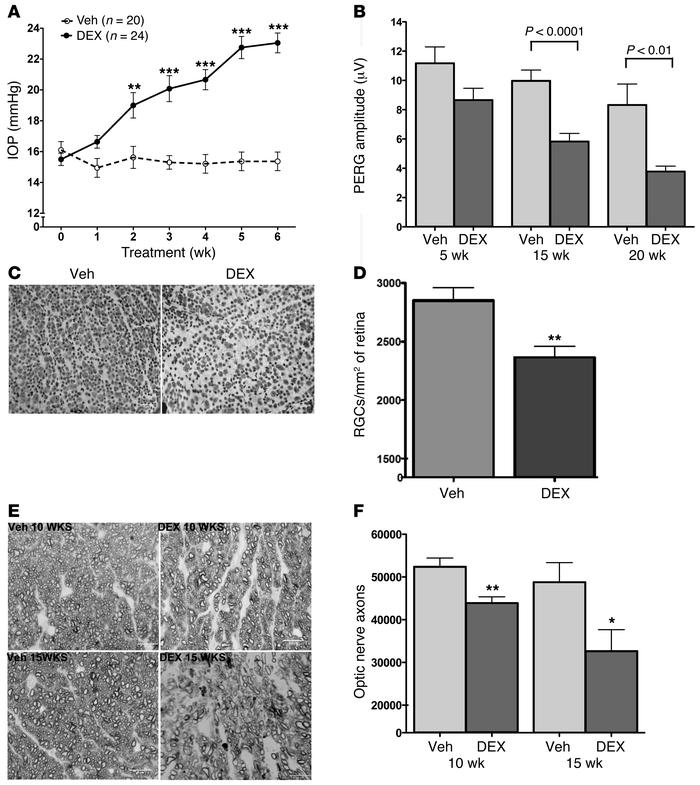 Topical ocular dexamethasone induces glaucoma in mice. (A) Elevated IOP ...