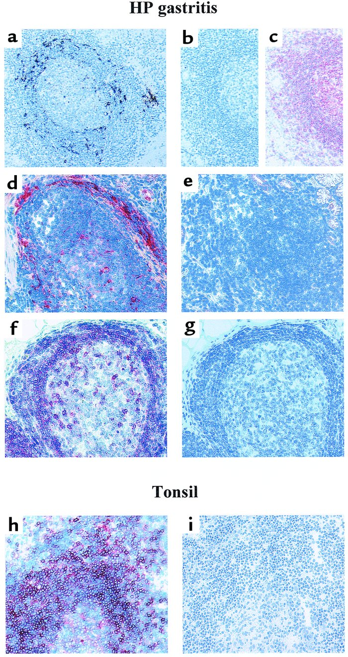 BCA-1 and CXCR5 expression in chronic Hp gastritis. (a) In situ expressi...