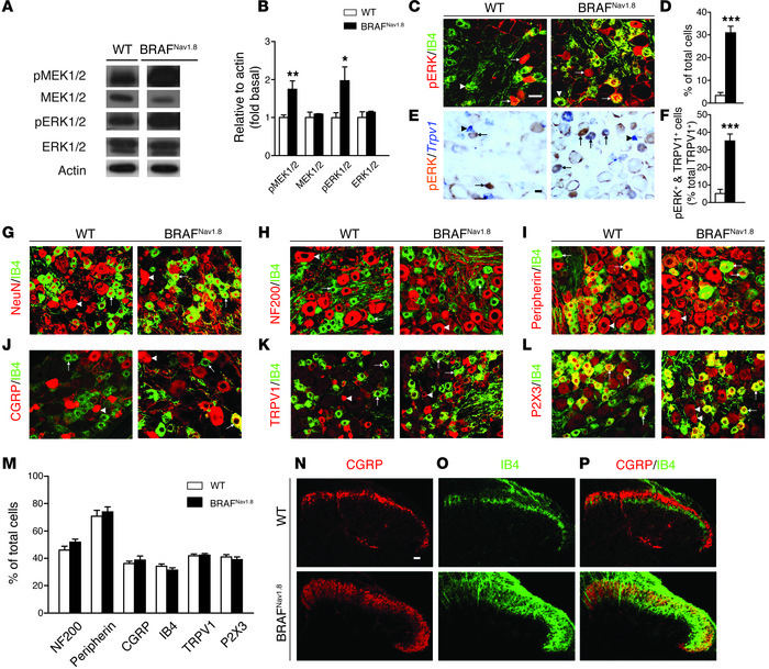 Increased levels of pMEK1/2 and pERK1/2 in sensory neurons and aberrant ...