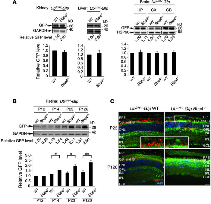 Accumulation of GFP in Bbs4–/– mice.   (A and B) Immunoblo...