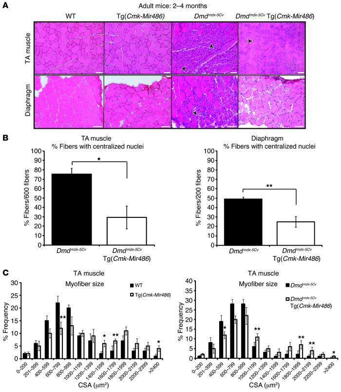 Overexpression of miR-486 in dystrophic Dmdmdx-5Cv mouse muscles reduces...