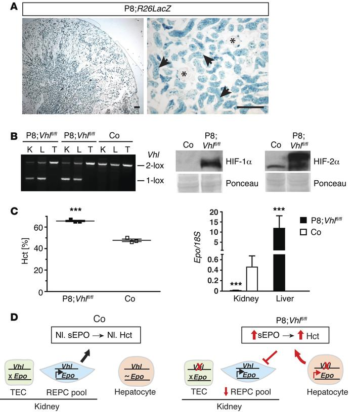 Pax8-rtTA–mediated inactivation of Vhl induces hepatic EPO and causes p...