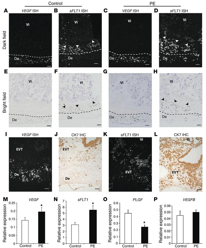 Increased VEGF expression in decidual cells and sFLT1 expression in adja...