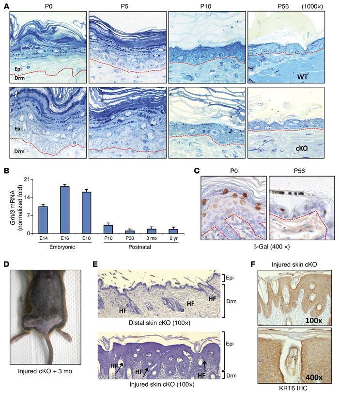 Grhl3 is dispensable for epidermal differentiation in the adult mouse, b...