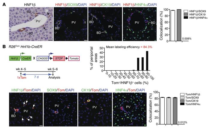 Efficient and specific inducible lineage labeling of the biliary compart...