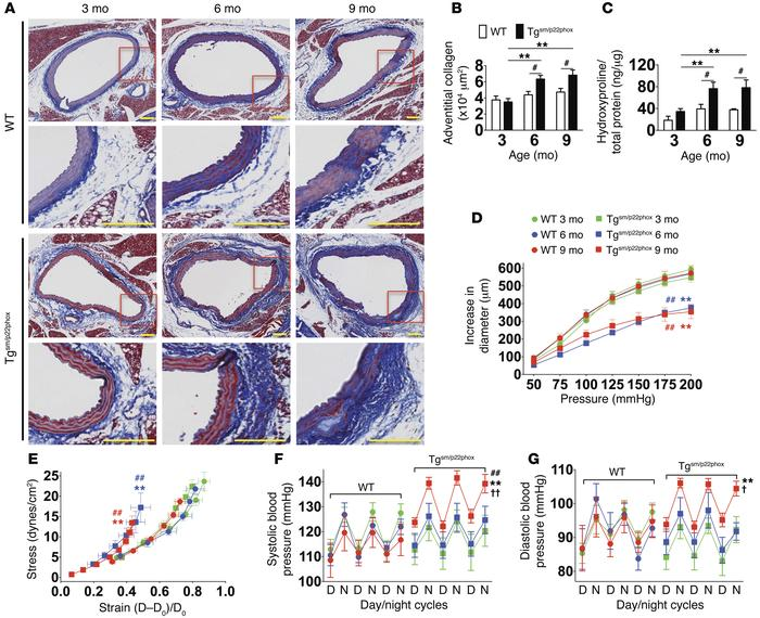 Tgsm/p22phox mice develop age-related aortic stiffening and hypertension...