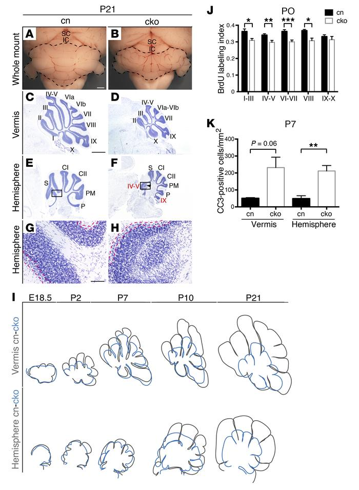 Chd7 regulates the proliferation and survival of cerebellar GCps. (A an...