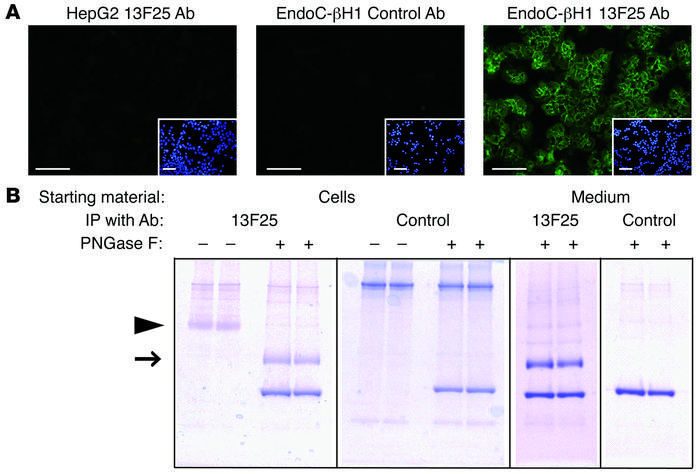 13F25 identifies expression of a xenotropic envelope viral protein in En...