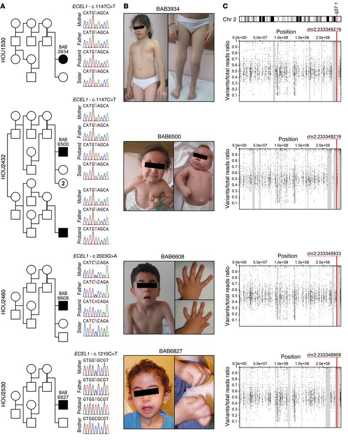 Segregation analyses, photographs, and AOH regions of the patients with ...