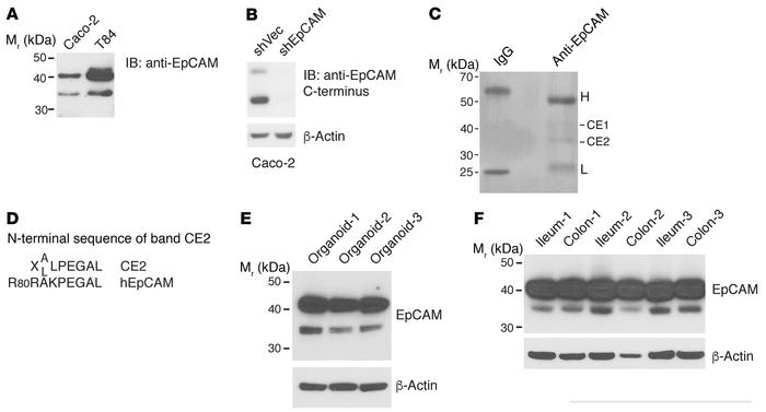 Multiple EpCAM species in IEC lysates reflect proteolytic processing. (A...