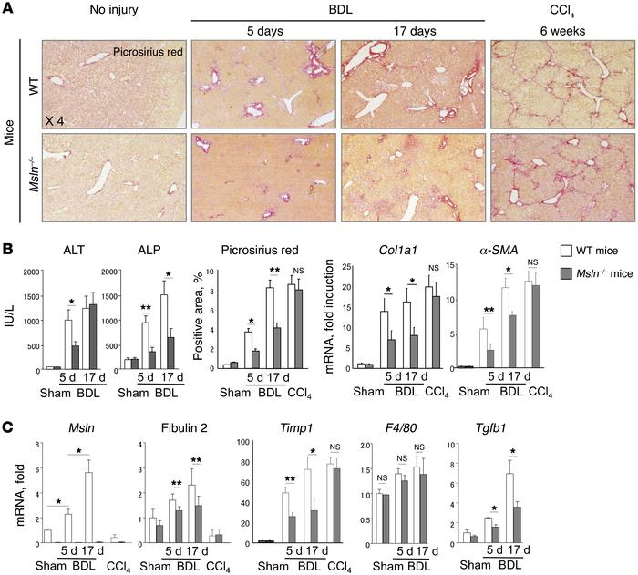 Deletion of Msln attenuates the development of cholestatic liver fibrosi...