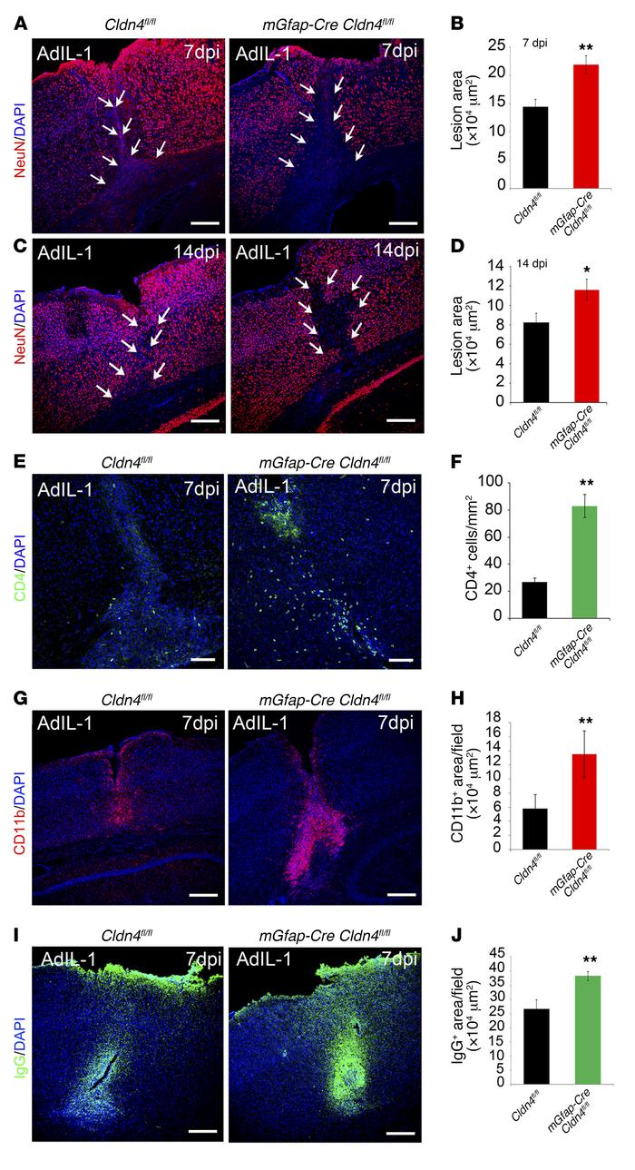 Conditional astrocyte Cldn4 inactivation exacerbates the size of inflamm...
