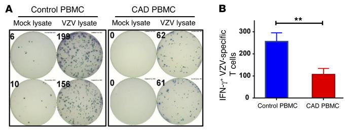 Protective immunity against VZV is impaired in patients with CAD. PBMCs ...