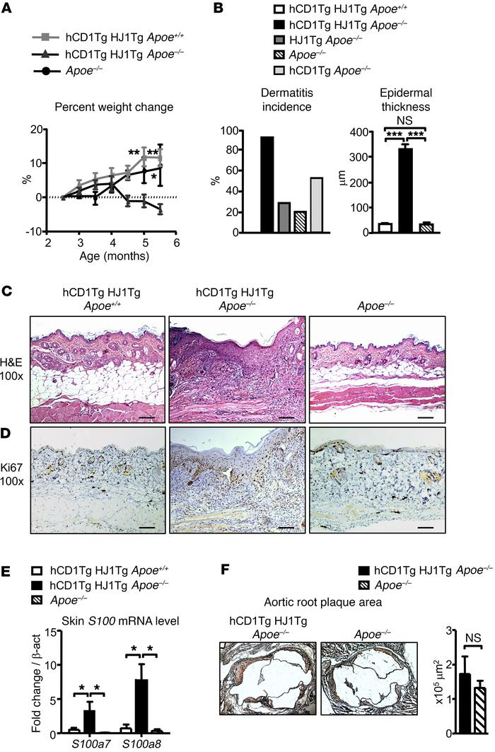 hCD1Tg HJ1Tg Apoe–/– mice spontaneously develop skin inflammation. (A) M...