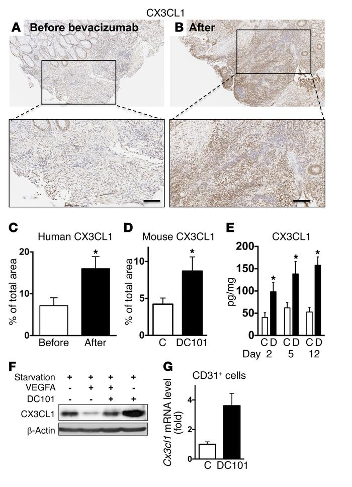 Blockade of VEGF/VEGFR2 signaling upregulates CX3CL1 in both human and m...