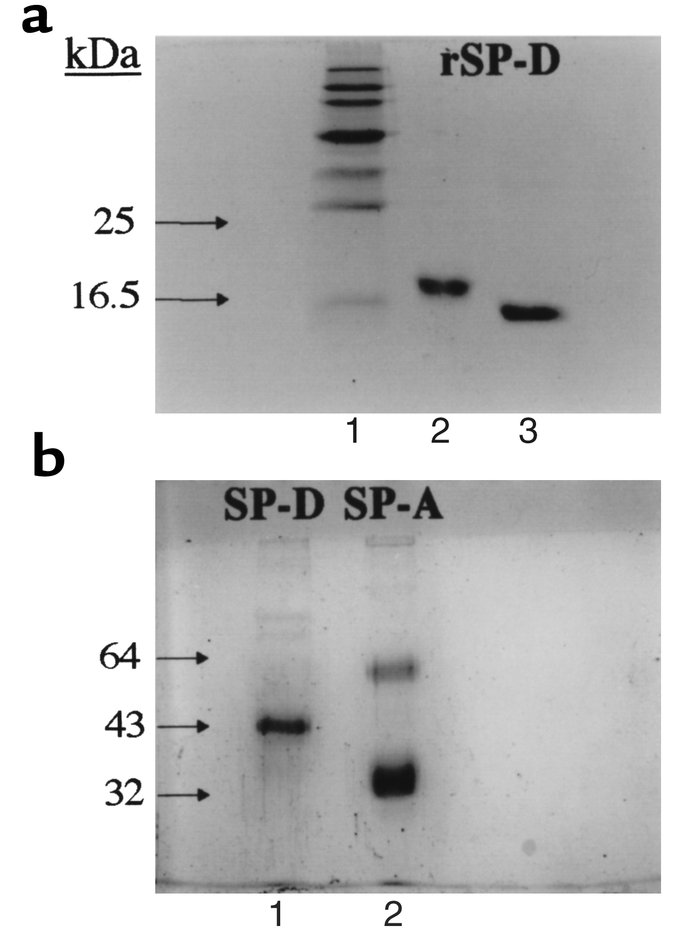 (a) SDS-PAGE (15% wt/vol) analysis of purified preparations of rSP-D und...