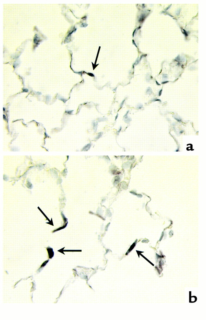 In situ ligation of labeled DNA fragments. (a) Control rat lung. (b) SU5...