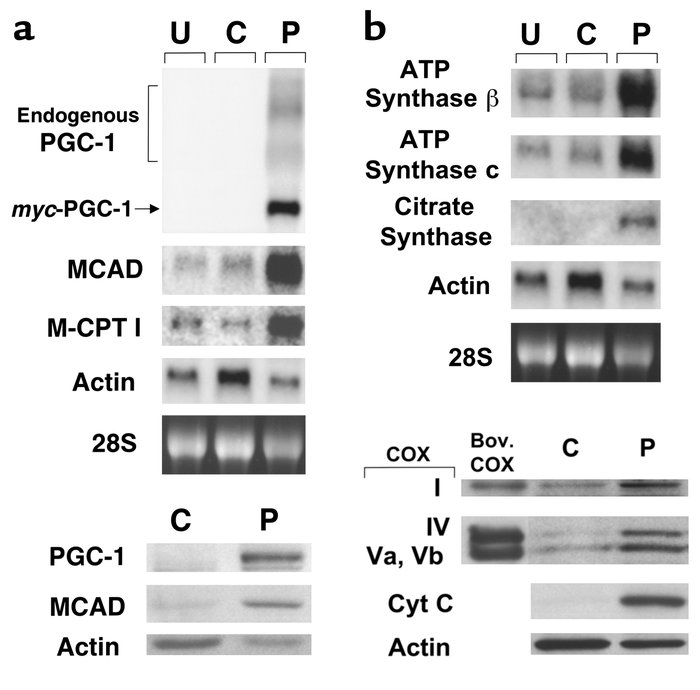Forced expression of PGC-1 in cultured rat neonatal cardiac myocytes ind...