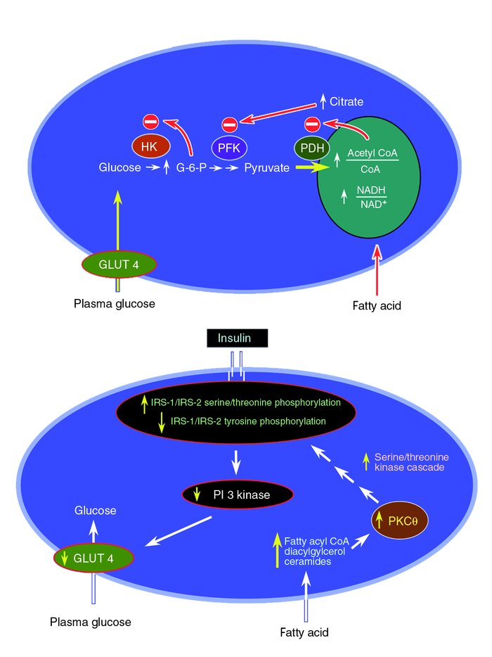 Top: Mechanism of fatty acid–induced insulin resistance in skeletal musc...