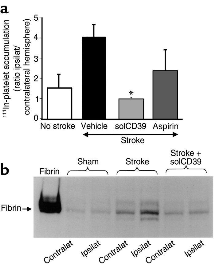 Effect of stroke in cd39+/+ mice with or without solCD39 or aspirin ther...
