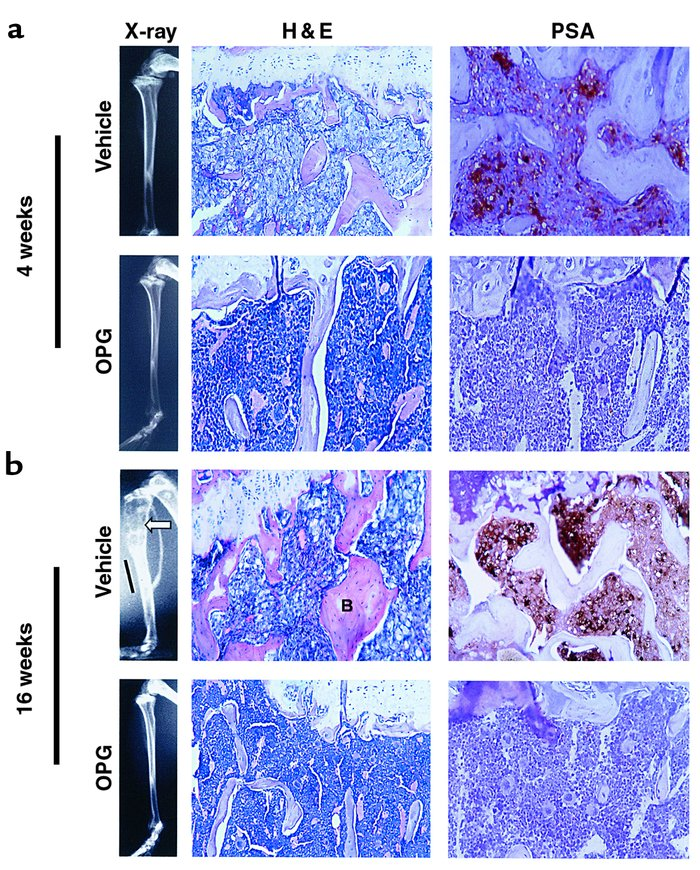 jci osteoprotegerin inhibits prostate cancer\u2013inducedcharacteristics of c4 2b bone lesions scid mice were injected intratibi
