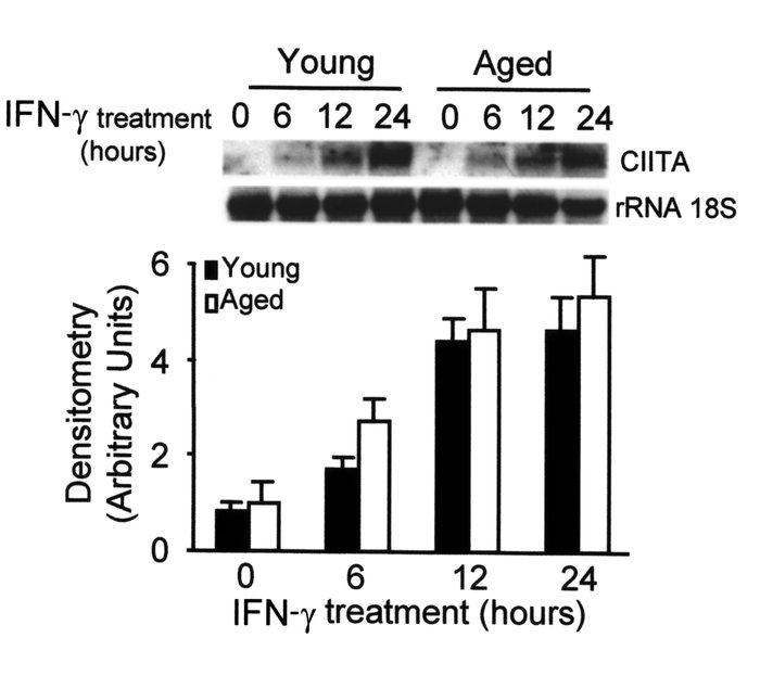 Similar kinetics of CIITA mRNA expression in macrophages from aged and y...