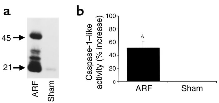 Caspase-1 protein expression (a) and activity (b) are increased in ische...