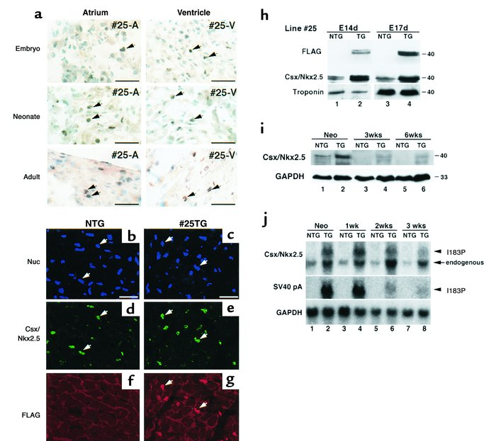 Expression of Csx/Nkx2.5(I183P) and endogenous Csx/Nkx2.5 in TG mice. (a...