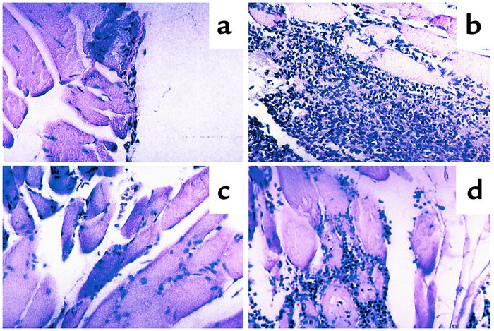 Histological evaluation of inflamed tissues. Representative sections of ...