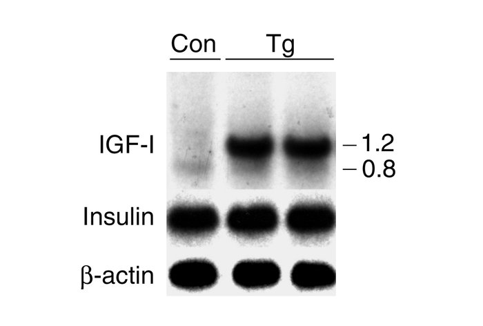 Expression of IGF-I and insulin in the pancreas of transgenic mice (C57B...